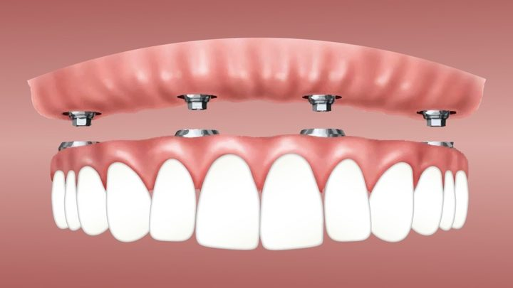 Warum sind Zahnimplantate so teuer?