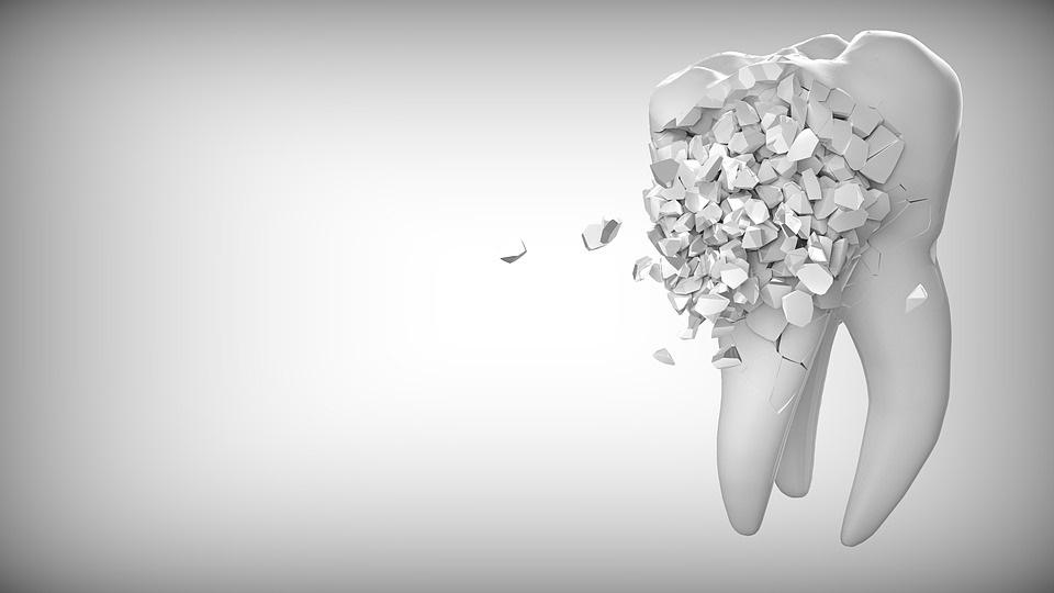 Was tun gegen Schmerzen durch einen gebrochenen Zahn?