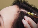Regenera Activa vs. FUE Haartransplantation